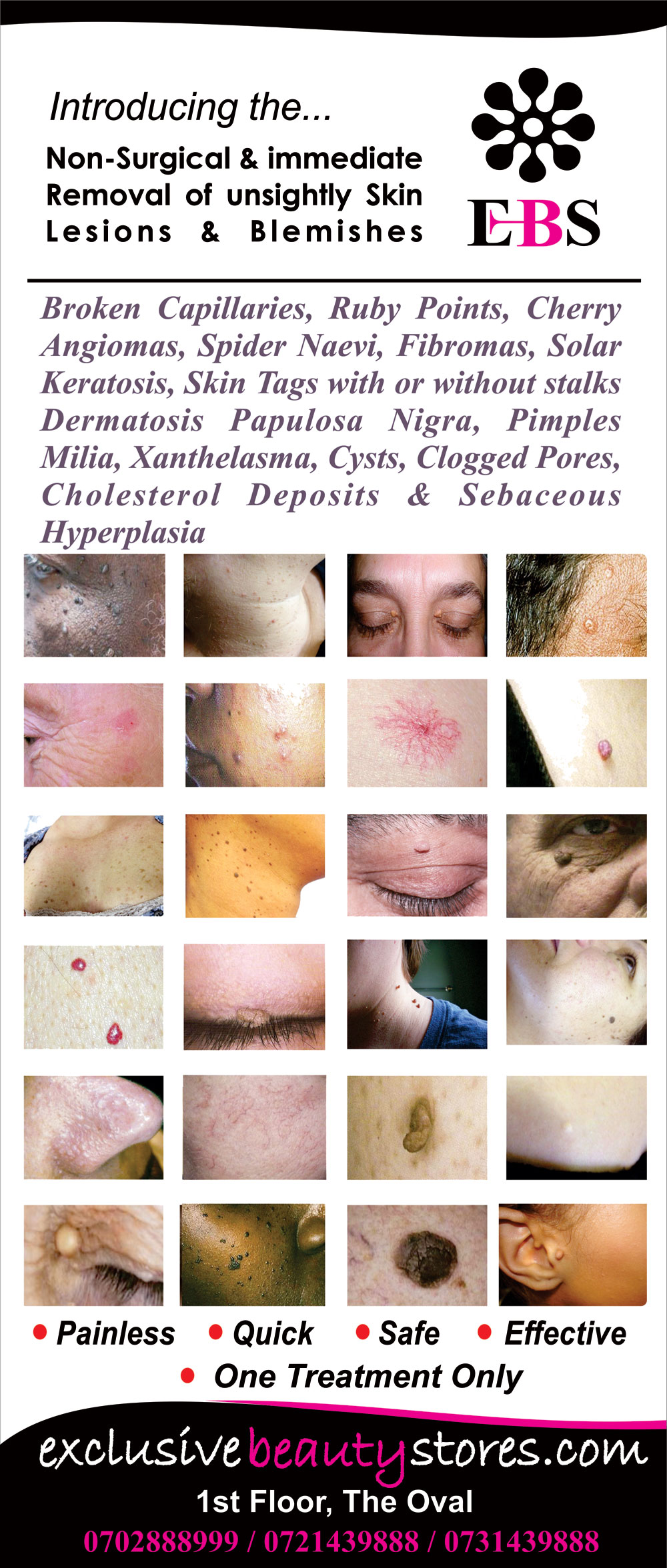 unsightly-skin-lesions-and-blemishes-removal
